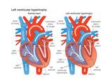 Left Ventricular Hypertrophy Posters