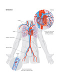 Heart-Lung Machine. Cardiovascular Disease, Cardiopulmonary Bypass, Circulatory System Prints