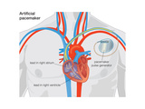 Diagram of Normal Heart Valve Compared to Artificial Heart Valve. Cardiovascular Disease Photo