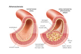 Atherosclerosis Posters by  Encyclopaedia Britannica