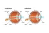 Scleral Buckle. Eye, Ophthalmology, Health and Disease Posters van  Encyclopaedia Britannica