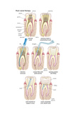 Dental Implant. Dentistry, Endodontics, Teeth, Tooth Damage, Oral Health, Health and Disease Poster