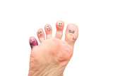 Foot Problems, Broken Toe and Calluses Photographic Print by  soupstock