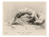 Mental Patient at la Salpetriere Going Through the Phase of Contortions Giclée-Druck von P. Richer