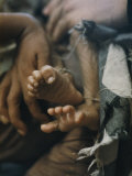 Close View of the Twisted Feet of a Starving Child Fotografisk tryk af W. E. Garrett