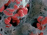 Blood Clot Formation, Showing Trapped Red Blood Cells or Erythrocytes in Fibrin Fotografisk tryk af David Phillips
