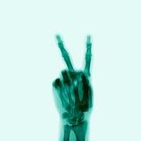X-Ray of Hand Doing Peace Sign Lámina fotográfica