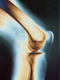 Knee X-ray Photographic Print