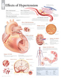 Effects of Hypertension Educational Blood Pressure Chart Poster Pôsters