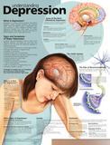 Understanding Depression Anatomical Chart 2nd Edition Poster Print アートポスター