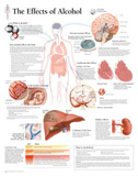 Laminated The Effects of Alcohol Educational Chart Poster Affiches