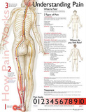 Understanding Pain Anatomical Chart Poster Print ポスター