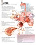 Laminated COPD Educational Disease Chart Poster Foto