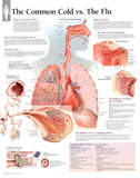 Laminated The Common Cold vs Flu Educational Chart Poster アートポスター