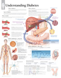 Laminated Understanding Diabetes Educational Chart Poster Photo
