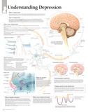 Laminated Understanding Depression Educational Chart Poster アートポスター