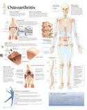 Understanding Osteoarthritis Educational Chart Poster Prints