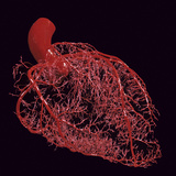 Resin Cast of Coronary Arteries of the Human Heart Photographic Print by Ralph Hutchings