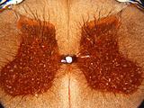Cross-Section of the Spinal Cord, Silver Stain, LM Valokuvavedos tekijänä David Phillips