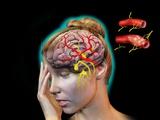 Vascular Causes of Headaches Fotografie-Druck von Jose Antonio