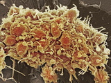 Platelets In a Blood Clot Photographic Print by Steve Gschmeissner