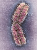 Human Chromosome 1, SEM Photographic Print by Adrian Sumner