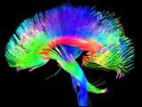 Brain Pathways 写真プリント : トム