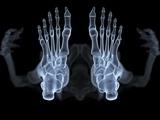 Skeleton From Below, X-ray Artwork Lámina fotográfica por David Mack