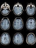 Normal Brain, MRI Scans Fotografie-Druck von  ZEPHYR