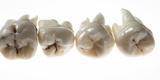 Four Human Wisdom Teeth Shot on White Photographic Print by Rebecca Hale