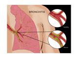 Bronchitis Plakater af Monica Schroeder