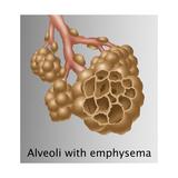 Alveoli with Emphysema Plakater af Gwen Shockey