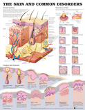 The Skin And Common Disorders Anatomical Chart Poster Poster